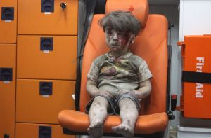 The image of Omran Daqneesh, 5, bloodied and covered with dust, is another stark reminder of the toll of the war in Syria.